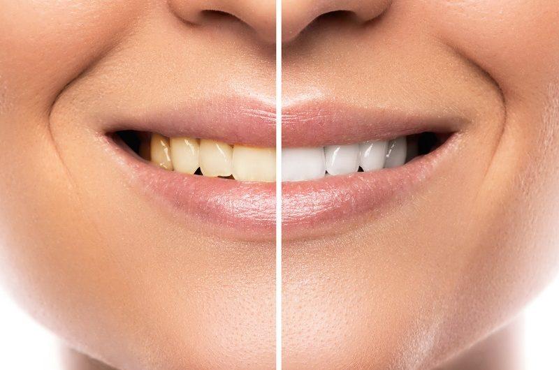 5 wskazówek, aby mieć zdrowe, białe zęby. Naturalne metody.